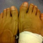 Дэвид Хэй: Я боксировал со сломанным пальцем на ноге, но Владимир все равно великий боец